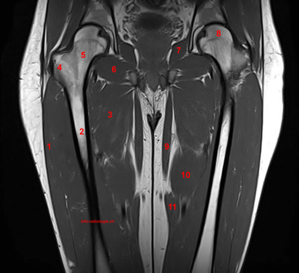 All About Mri Of The Thigh Detailed Anatomy Superior Part Www