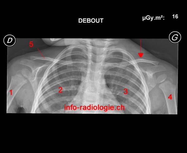 Fracture De La Clavicule Enfant