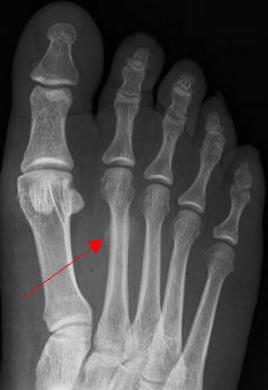 Fracture de fatigue du 2 me m tatarsien for Douleur interieur pied droit