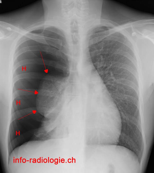 Pneumothorax for Combien coute un drain francais